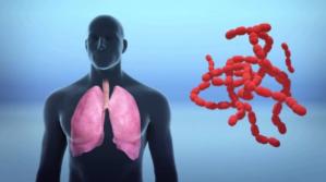 Lo que se sabe del nuevo coronavirus mortal que se propaga desde China