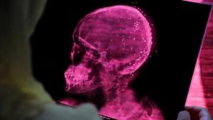 Estudio revela que el coronavirus altera el volumen de materia gris en el cerebro