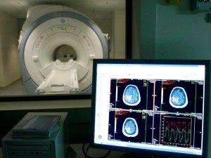 Identifican un biomarcador que detecta las fases iniciales del Alzheimer